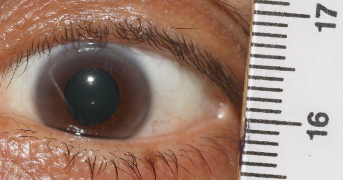 weiße iris auge